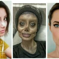 Hilarious photos! Iranian teenager undergoes multiple plastic surgeries to look like Angelina Jolie.
